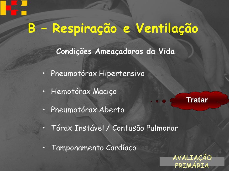 Condições Ameaçadoras da Vida Pneumotórax Hipertensivo Hemotórax Maciço Pneumotórax Aberto Tórax Instável / Contusão Pulmonar Tamponamento Cardíaco Tr