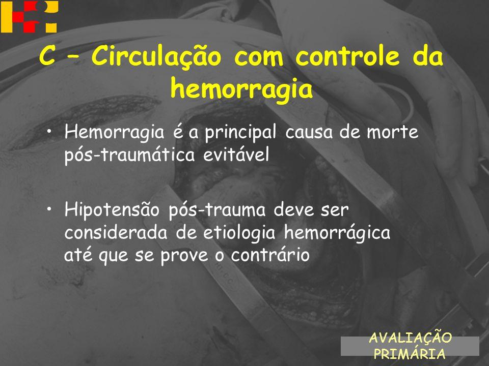 Hemorragia é a principal causa de morte pós-traumática evitável Hipotensão pós-trauma deve ser considerada de etiologia hemorrágica até que se prove o