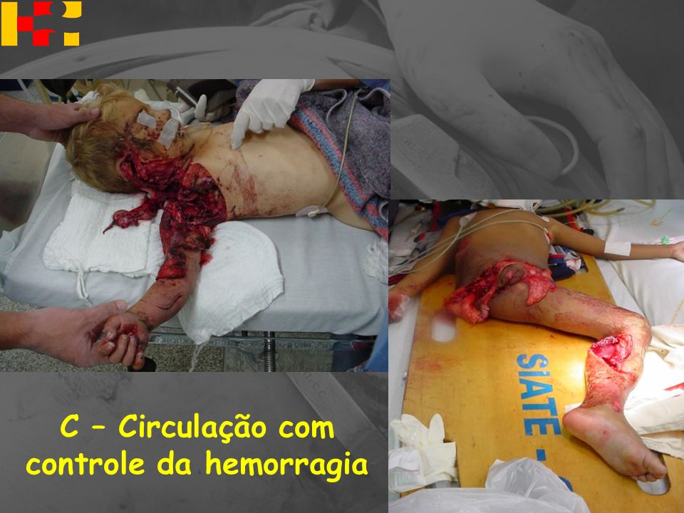 CONTROLE DA HEMORRAGIA Externa : Compressão Interna: Intervenção cirúrgica NÃOGarrotes e torniquetes = NÃO AVALIAÇÃO PRIMÁRIA C – Circulação com controle da hemorragia