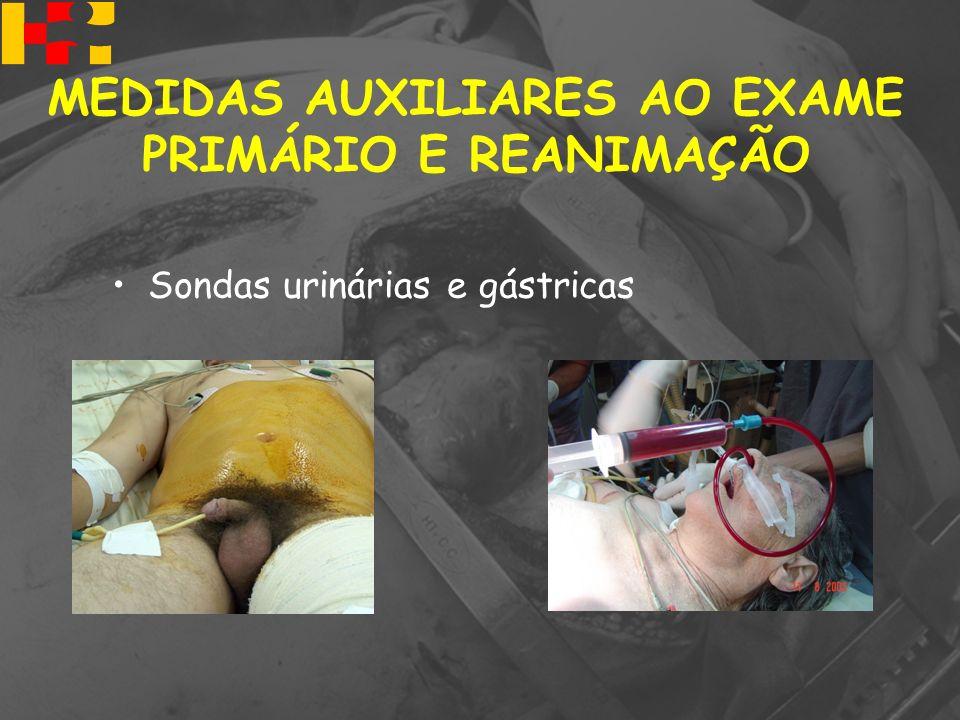 Sondas urinárias e gástricas MEDIDAS AUXILIARES AO EXAME PRIMÁRIO E REANIMAÇÃO