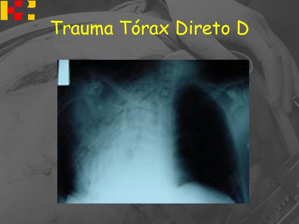 Trauma Tórax Direto D