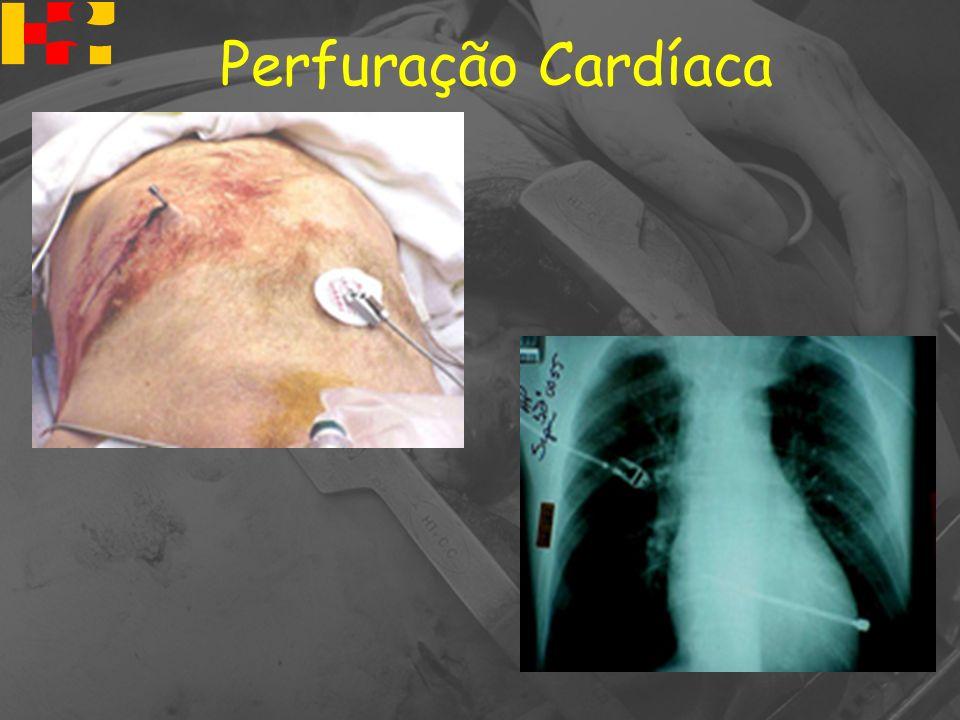 Perfuração Cardíaca