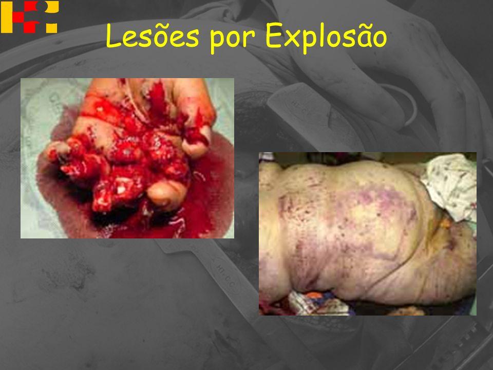 Lesões por Explosão