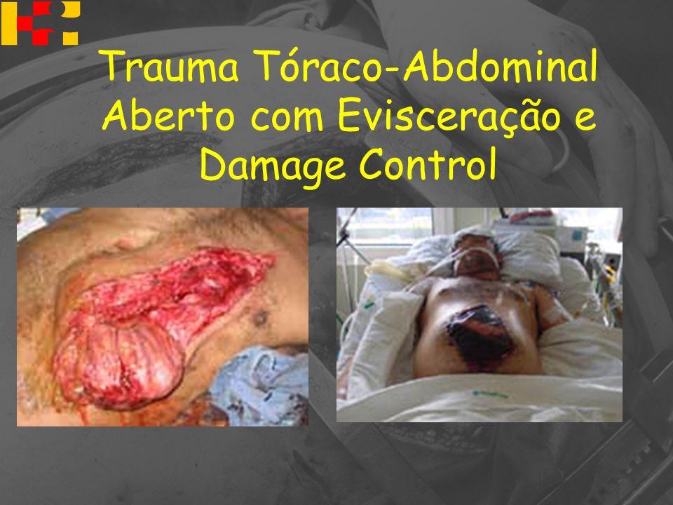 Trauma Tóraco-Abdominal Aberto com Evisceração e Damage Control