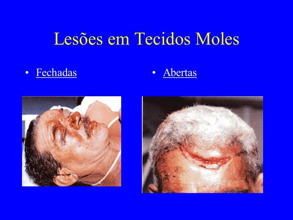 Lesões Fechadas EquimoseHematoma