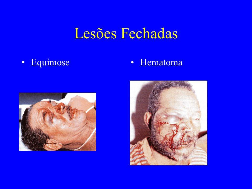 Lesões Fechadas Tratatamento -Aplicação de compressas frias a fim de diminuir a formação de edema sob o tecido cutâneo.
