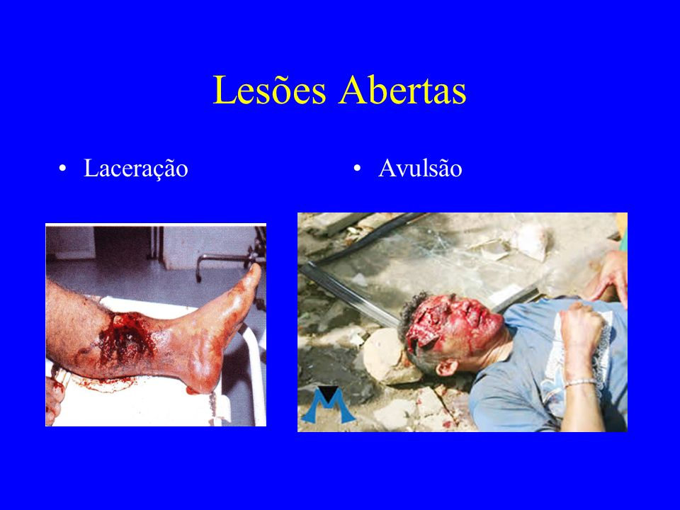 Lesões Abertas LaceraçãoAvulsão