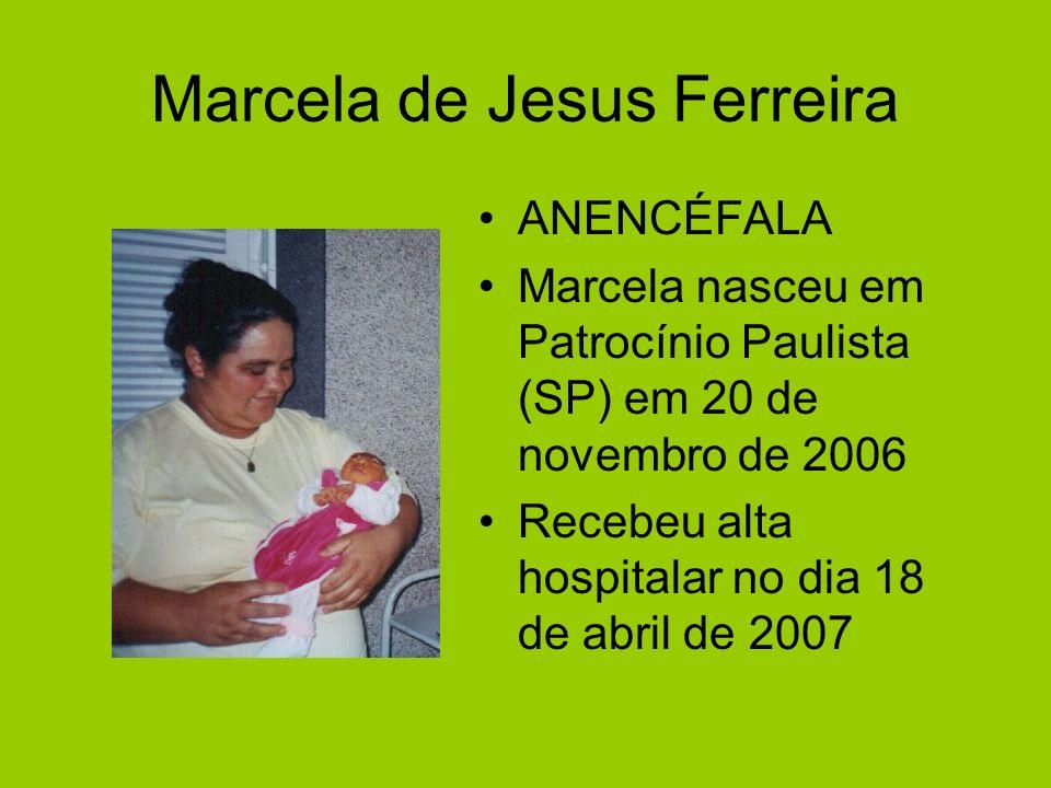 Marcela de Jesus Ferreira ANENCÉFALA Marcela nasceu em Patrocínio Paulista (SP) em 20 de novembro de 2006 Recebeu alta hospitalar no dia 18 de abril d