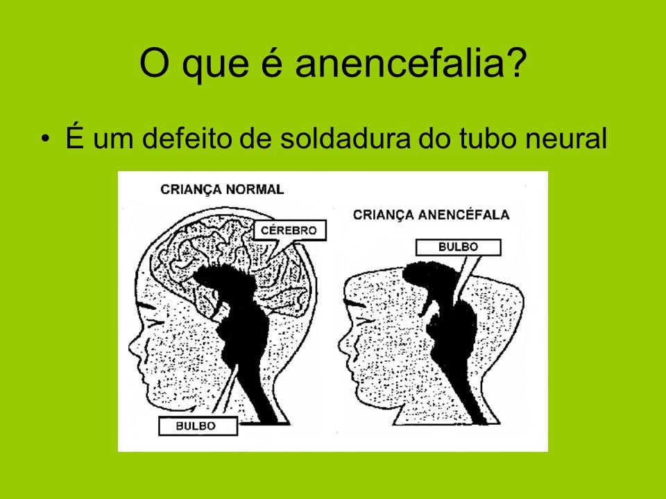 O que é anencefalia? É um defeito de soldadura do tubo neural