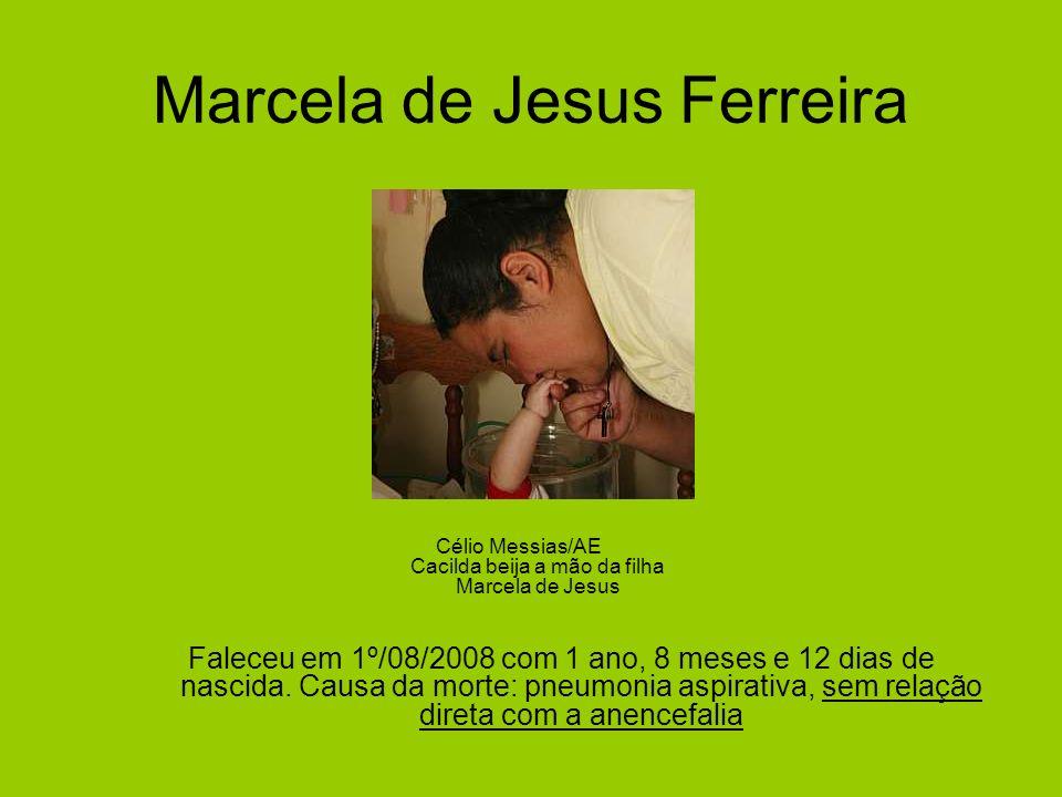 Marcela de Jesus Ferreira Célio Messias/AE Cacilda beija a mão da filha Marcela de Jesus Faleceu em 1º/08/2008 com 1 ano, 8 meses e 12 dias de nascida