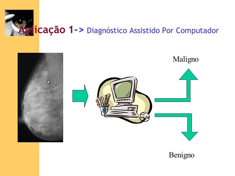 Aplicação 1-> Diagnóstico Assistido Por Computador Maligno Benigno