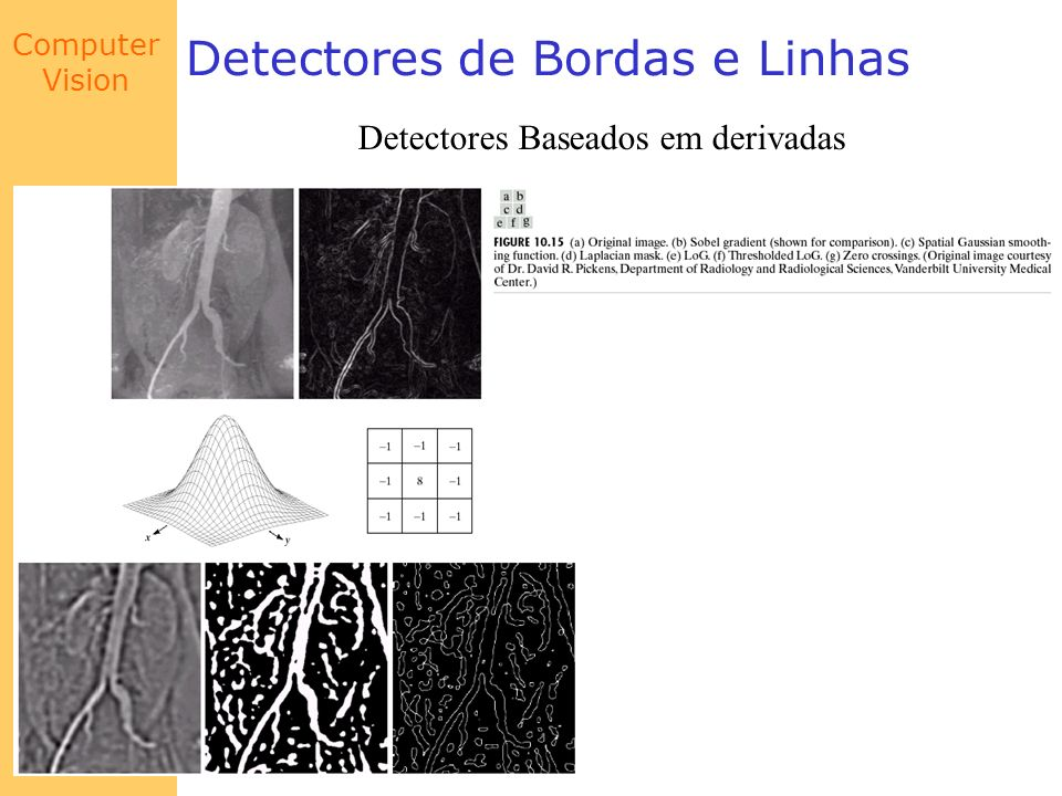 Computer Vision Detectores de Bordas e Linhas Detectores Baseados em derivadas
