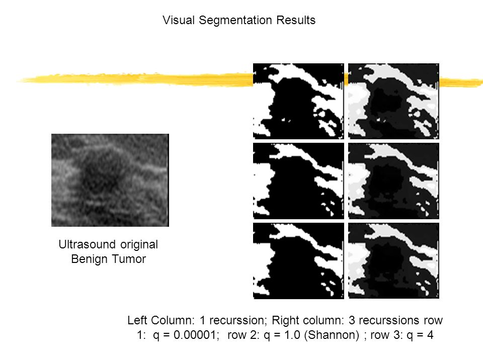 Ultrasound original Benign Tumor Left Column: 1 recurssion; Right column: 3 recurssions row 1: q = 0.00001; row 2: q = 1.0 (Shannon) ; row 3: q = 4 Visual Segmentation Results