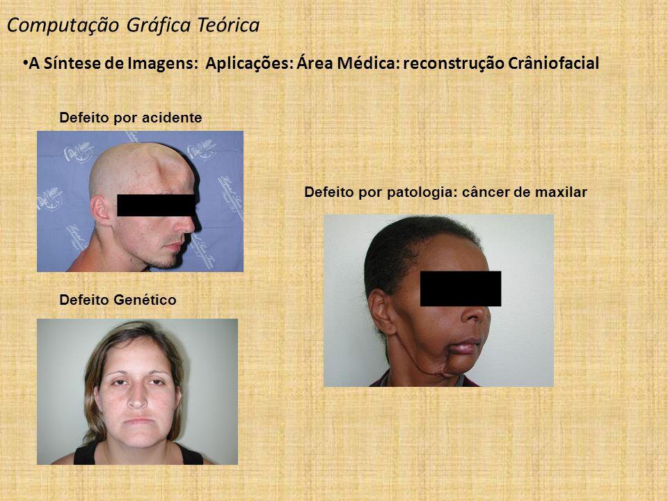 Defeito por acidente Defeito Genético Defeito por patologia: câncer de maxilar Computação Gráfica Teórica A Síntese de Imagens: Aplicações: Área Médic