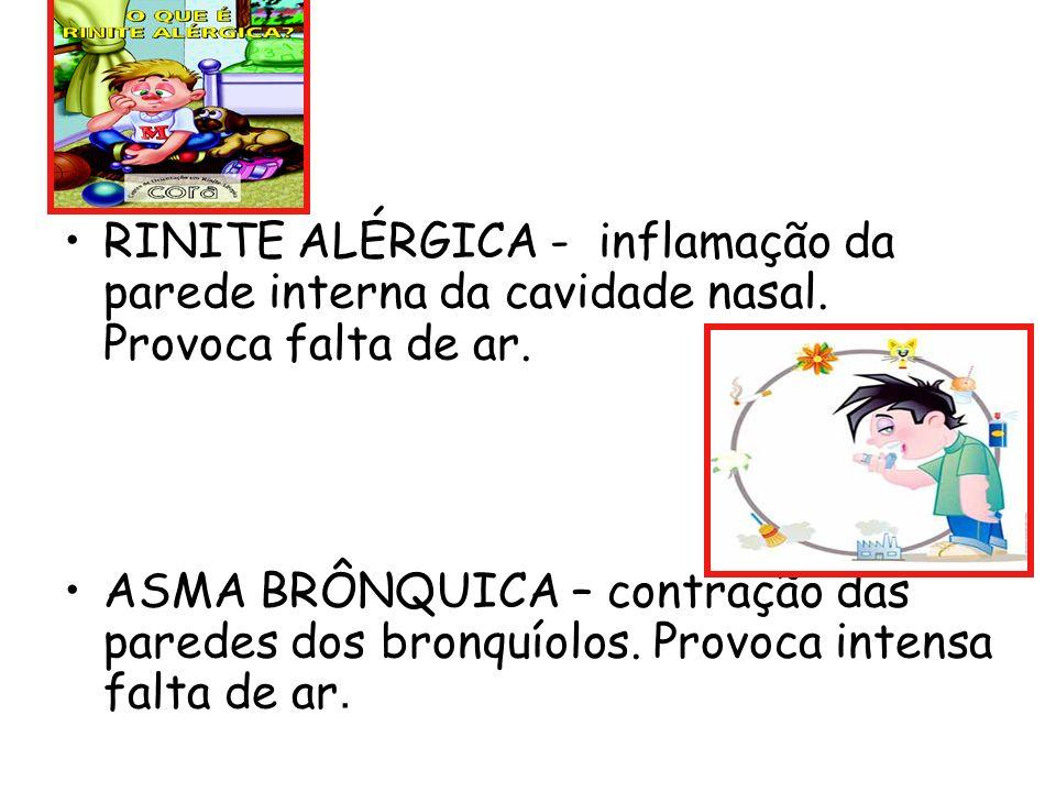 RINITE ALÉRGICA - inflamação da parede interna da cavidade nasal. Provoca falta de ar. ASMA BRÔNQUICA – contração das paredes dos bronquíolos. Provoca