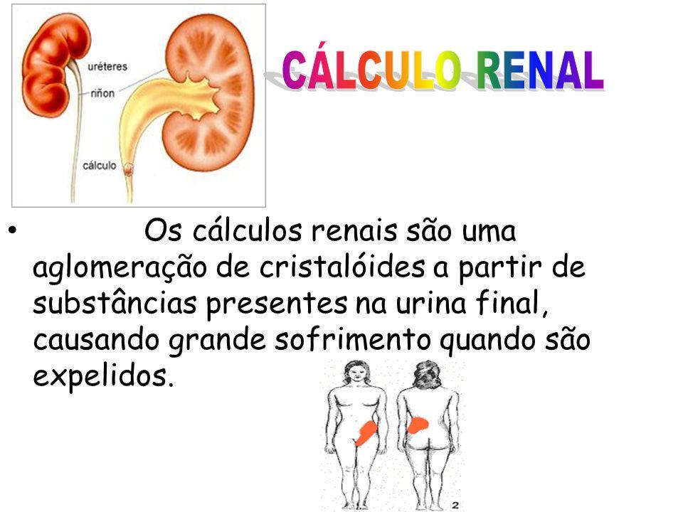 Os cálculos renais são uma aglomeração de cristalóides a partir de substâncias presentes na urina final, causando grande sofrimento quando são expelid