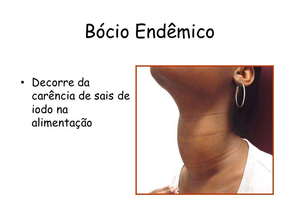 Bócio Endêmico Decorre da carência de sais de iodo na alimentação