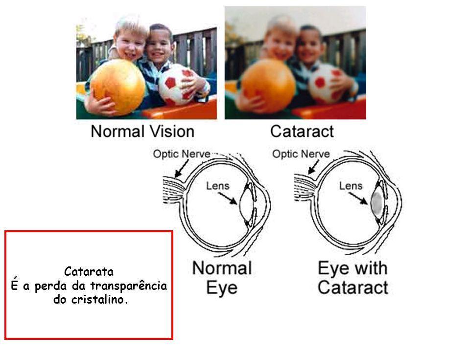 MÀQUINA Distância focal variável: Lentes móveis Íris: diâmetro regulável O OLHO É UMA CAMERA SUPER-AUTOMÁTICA OLHO Procura e focaliza o objeto de inte