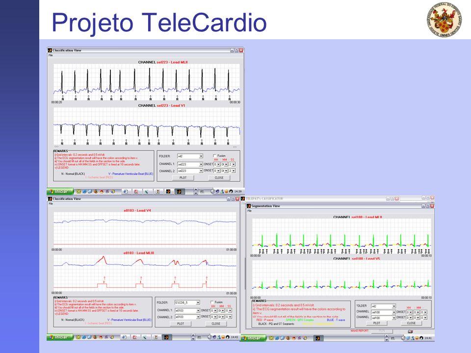 FAPES - 2005 Projeto TeleCardio