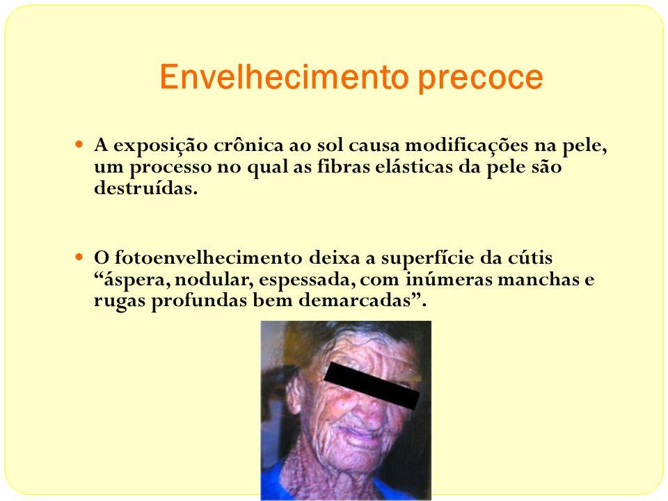 Envelhecimento precoce A exposição crônica ao sol causa modificações na pele, um processo no qual as fibras elásticas da pele são destruídas. O fotoen