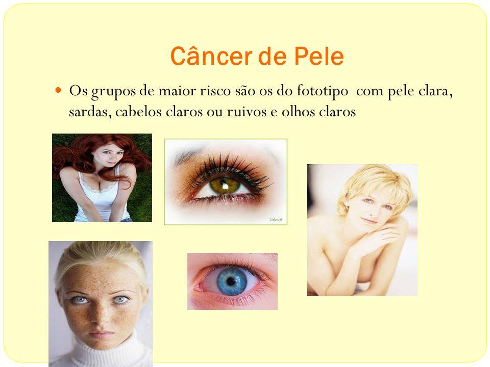 Câncer de Pele Os grupos de maior risco são os do fototipo com pele clara, sardas, cabelos claros ou ruivos e olhos claros