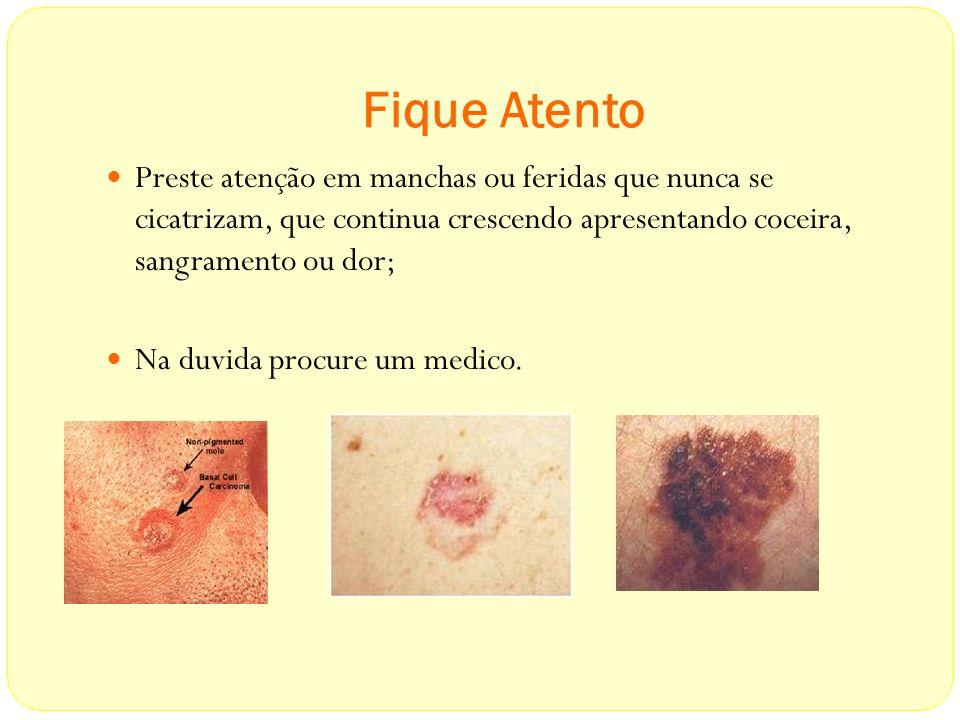 Fique Atento Preste atenção em manchas ou feridas que nunca se cicatrizam, que continua crescendo apresentando coceira, sangramento ou dor; Na duvida