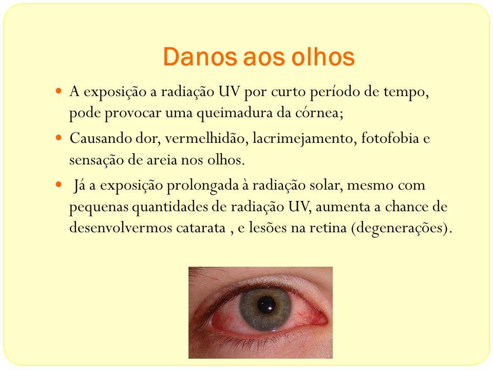 Danos aos olhos A exposição a radiação UV por curto período de tempo, pode provocar uma queimadura da córnea; Causando dor, vermelhidão, lacrimejament