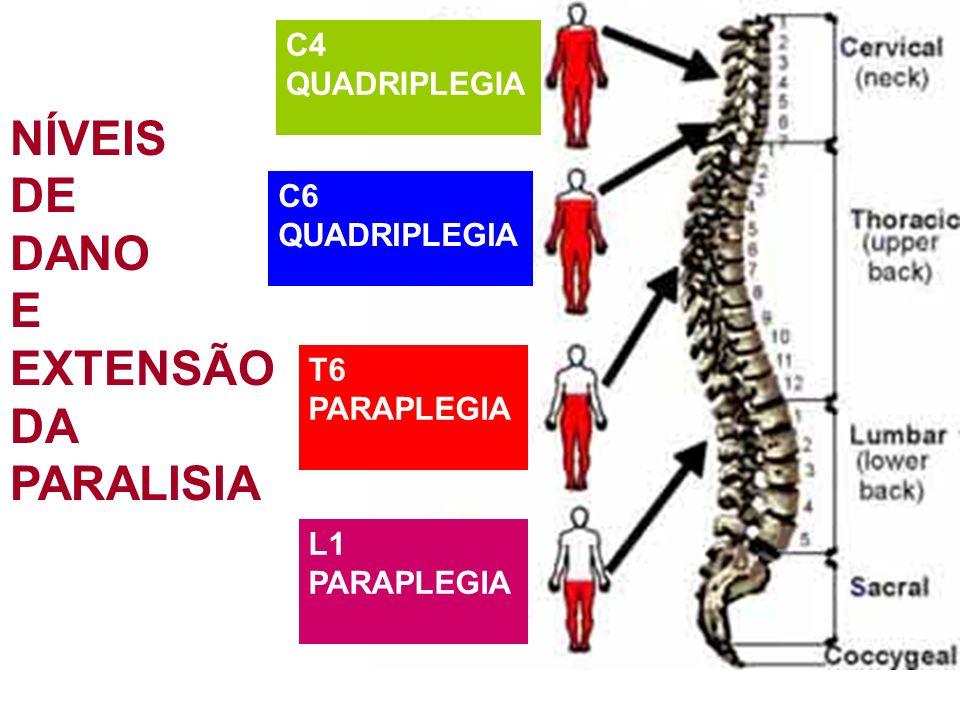 C4 QUADRIPLEGIA C6 QUADRIPLEGIA T6 PARAPLEGIA L1 PARAPLEGIA NÍVEIS DE DANO E EXTENSÃO DA PARALISIA