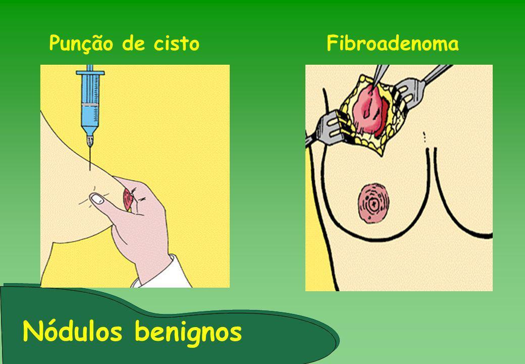 Fibroadenoma Nódulos benignos Punção de cisto