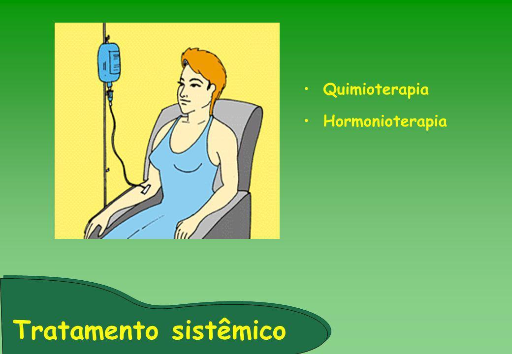 Tratamento sistêmico Quimioterapia Hormonioterapia