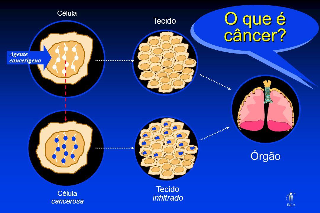 Órgão Tecido infiltrado Célula cancerosa Agente cancerígeno O que é câncer?