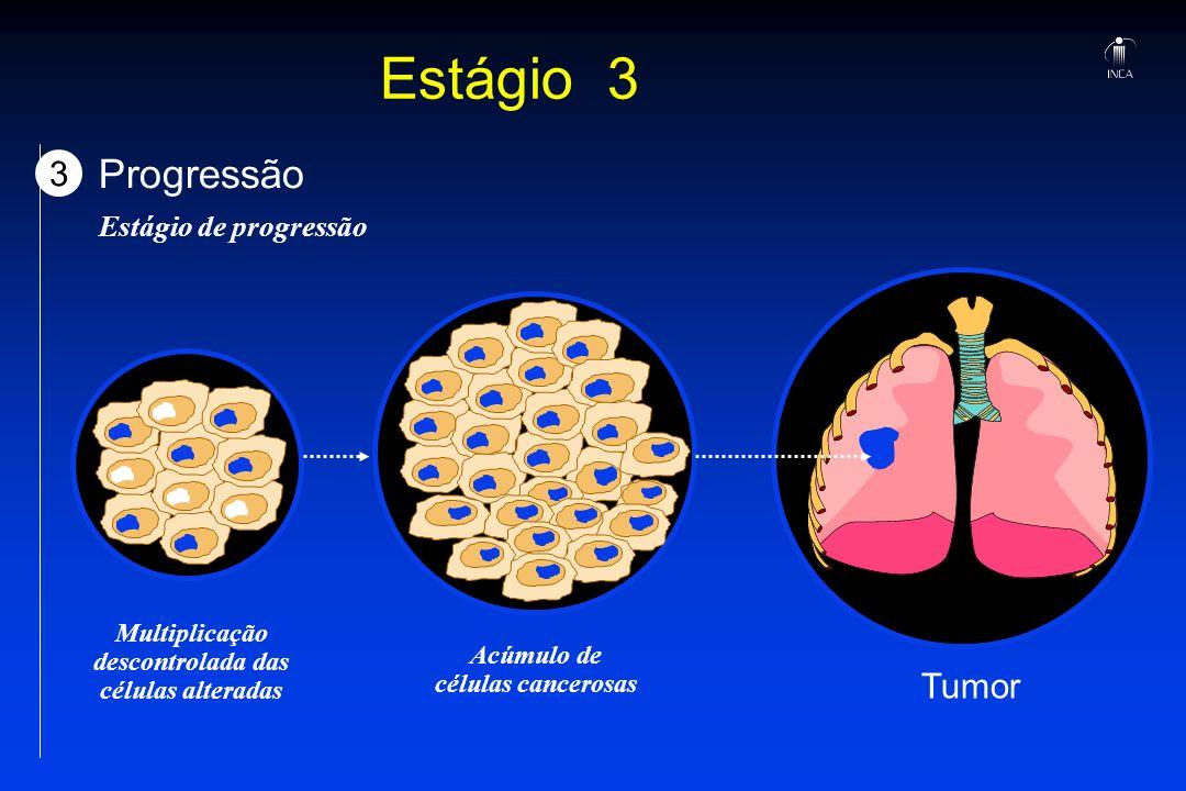 Estágio 3 3 Progressão Estágio de progressão Multiplicação descontrolada das células alteradas Acúmulo de células cancerosas Tumor