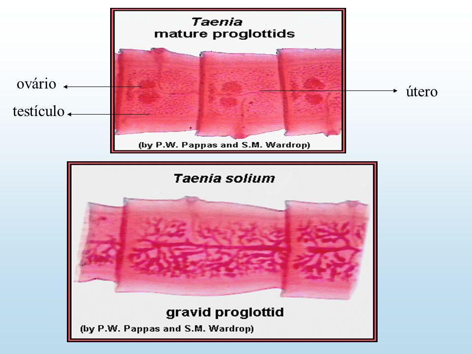 Taenia saginata Proglótide grávido Escólex