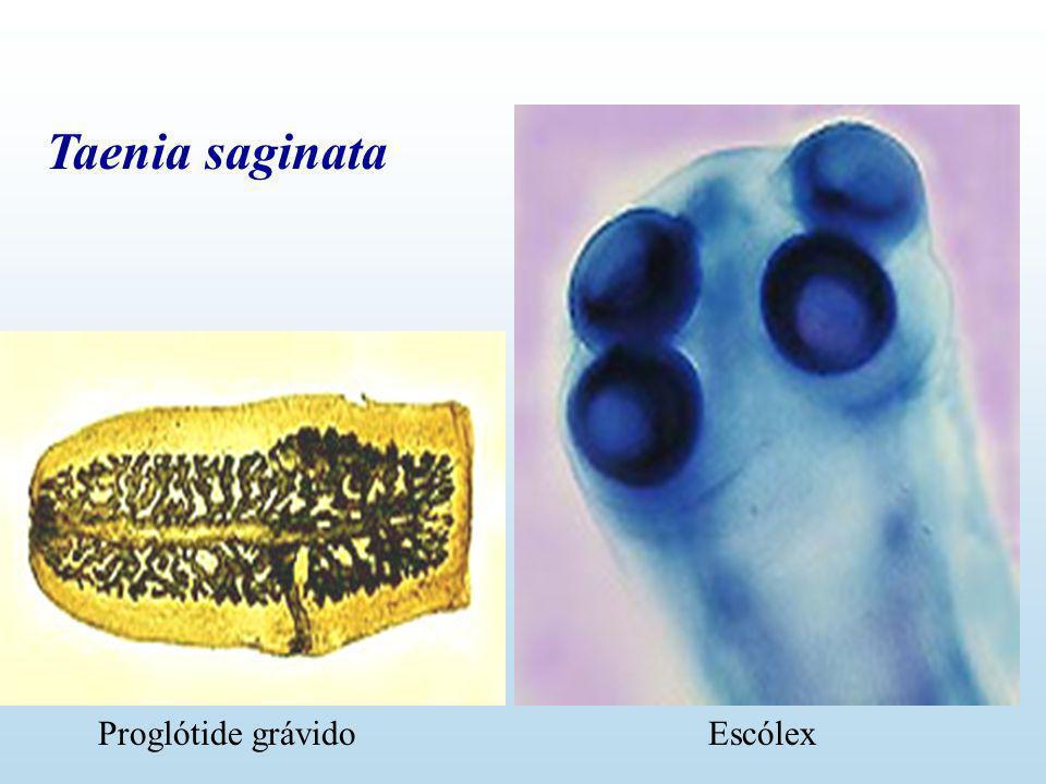 Echinococcus granulosus HD HI Ingestão de ovos Ingestão de cistos Hidatidose Equinococose Hidatidose