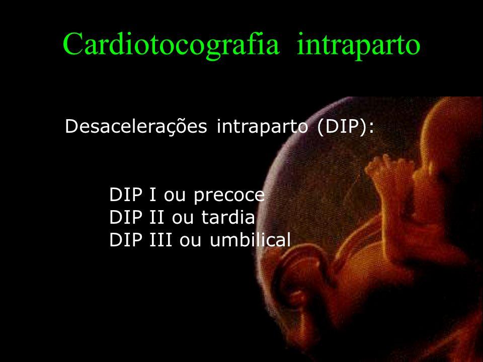 Cardiotocografia intraparto Desacelerações intraparto (DIP): DIP I ou precoce DIP II ou tardia DIP III ou umbilical