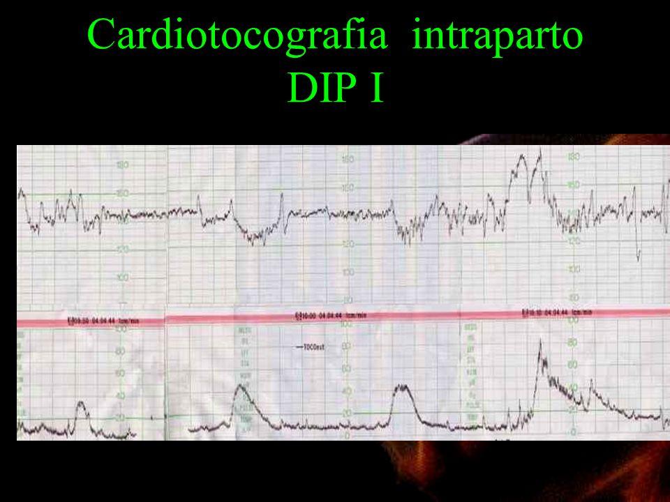 Cardiotocografia intraparto DIP I
