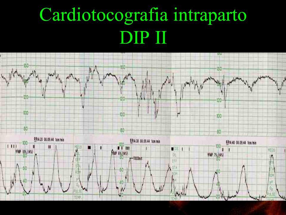 Cardiotocografia intraparto DIP II