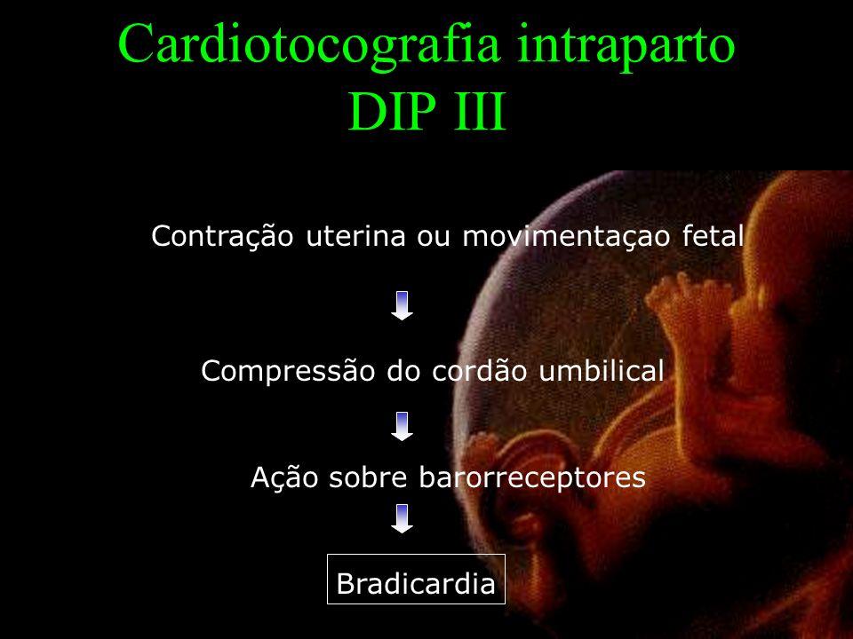 Cardiotocografia intraparto DIP III Contração uterina ou movimentaçao fetal Compressão do cordão umbilical Ação sobre barorreceptores Bradicardia