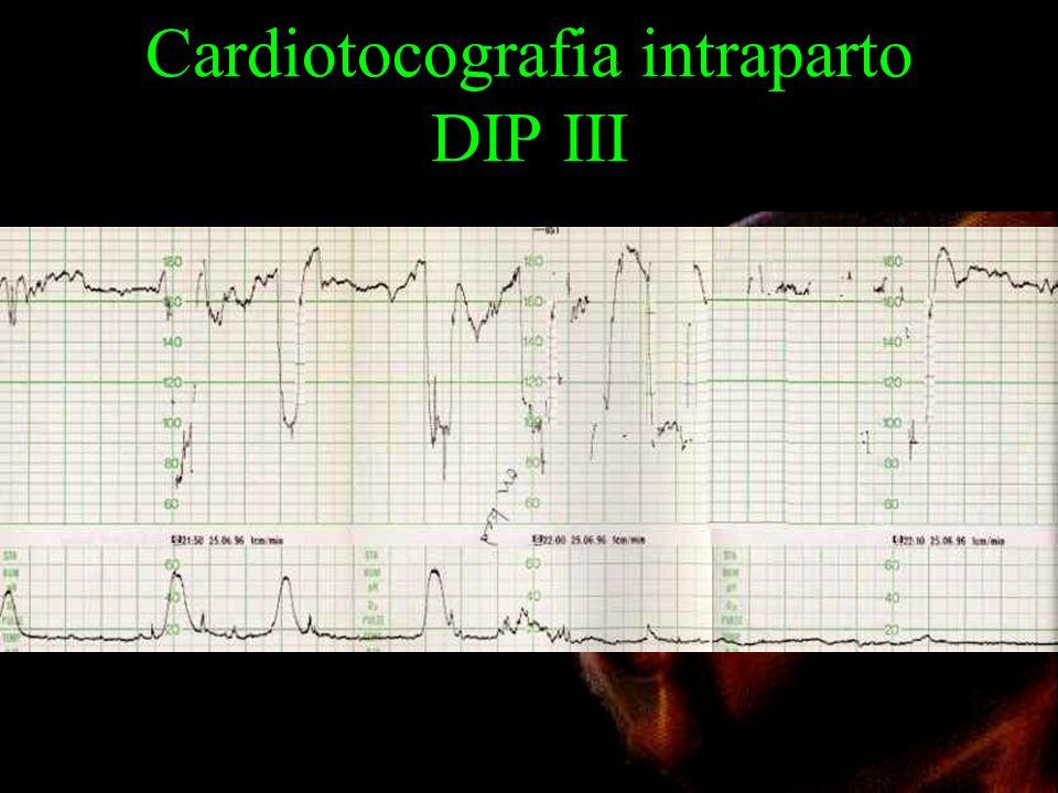 Cardiotocografia intraparto DIP III