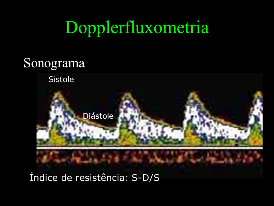 Dopplerfluxometria Sonograma Sístole Diástole Índice de resistência: S-D/S