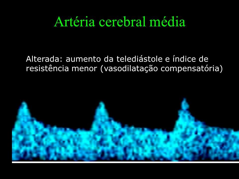Alterada: aumento da telediástole e índice de resistência menor (vasodilatação compensatória) Artéria cerebral média