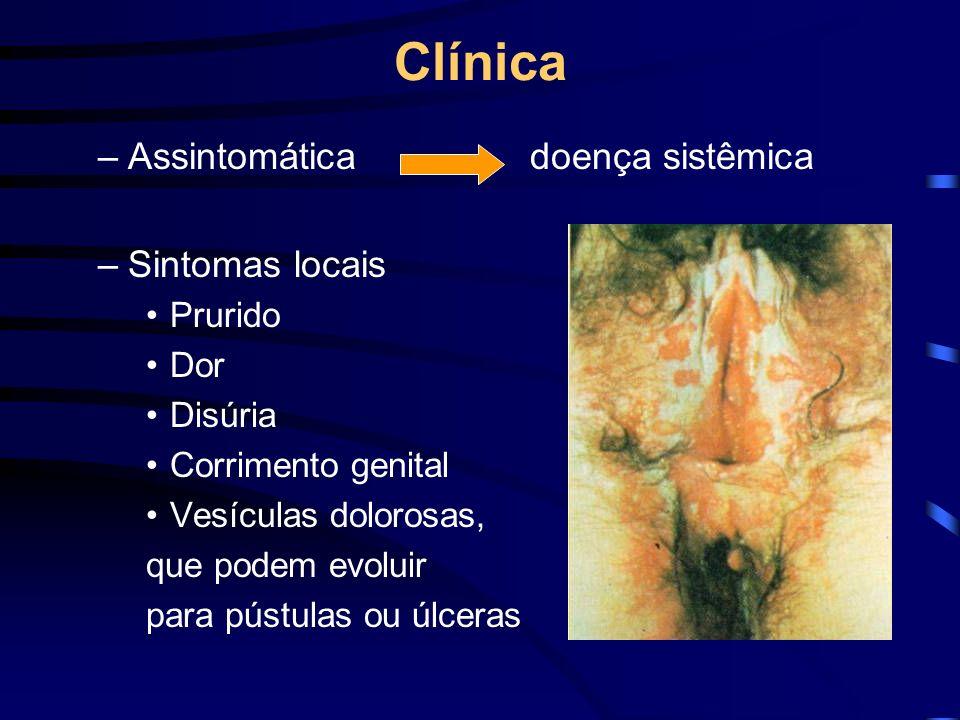 –Assintomáticadoença sistêmica –Sintomas locais Prurido Dor Disúria Corrimento genital Vesículas dolorosas, que podem evoluir para pústulas ou úlceras