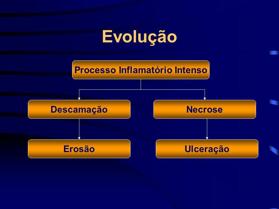 Evolução Processo Inflamatório Intenso Descamação UlceraçãoErosão Necrose