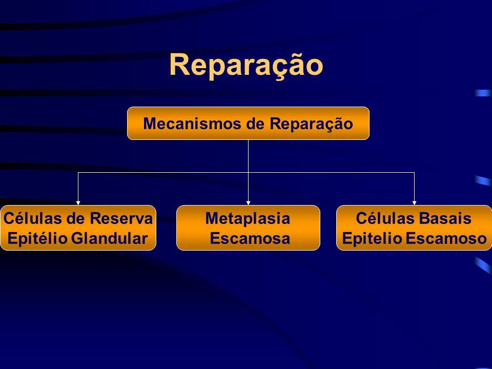 Reparação Mecanismos de Reparação Metaplasia Escamosa Células de Reserva Epitélio Glandular Células Basais Epitelio Escamoso