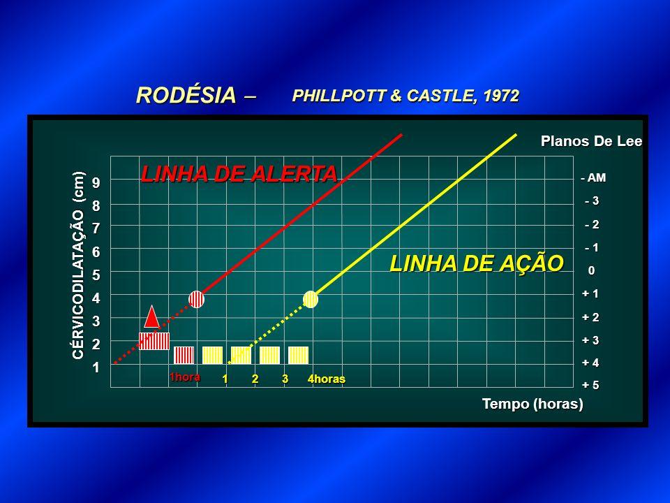 PHILLPOTT & CASTLE, 1972 RODÉSIA RODÉSIA 1 Tempo (horas) 2 3 + 3 4 + 2 5 + 1 6 0 7 - 1 8 - 2 9 - 3 - AM + 4 + 5 CÉRVICODILATAÇÃO (cm) Planos De Lee 1hora LINHA DE ALERTA 1234horas LINHA DE AÇÃO