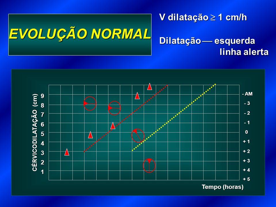EVOLUÇÃO NORMAL 1 Tempo (horas) 2 3 + 3 4 + 2 5 + 1 6 0 7 - 1 8 - 2 9 - 3 - AM + 4 + 5 CÉRVICODILATAÇÃO (cm) V dilatação 1 cm/h Dilatação esquerda linha alerta linha alerta