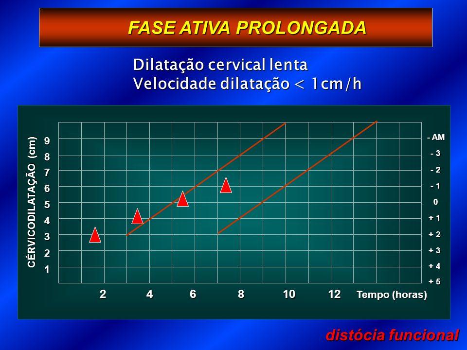 FASE ATIVA PROLONGADA distócia funcional 1 Tempo (horas) 2 3 + 3 4 + 2 5 + 1 6 0 7 - 1 8 - 2 9 - 3 - AM + 4 + 5 CÉRVICODILATAÇÃO (cm) 246 81012 Dilatação cervical lenta Velocidade dilatação < 1cm/h