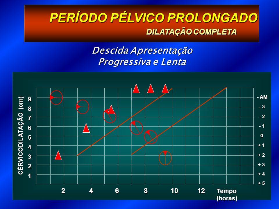 Descida Apresentação Progressiva e Lenta PERÍODO PÉLVICO PROLONGADO DILATAÇÃO COMPLETA 1 Tempo (horas) 2 3 + 3 4 + 2 5 + 1 6 0 7 - 1 8 - 2 9 - 3 - AM + 4 + 5 CÉRVICODILATAÇÃO (cm) 246 81012