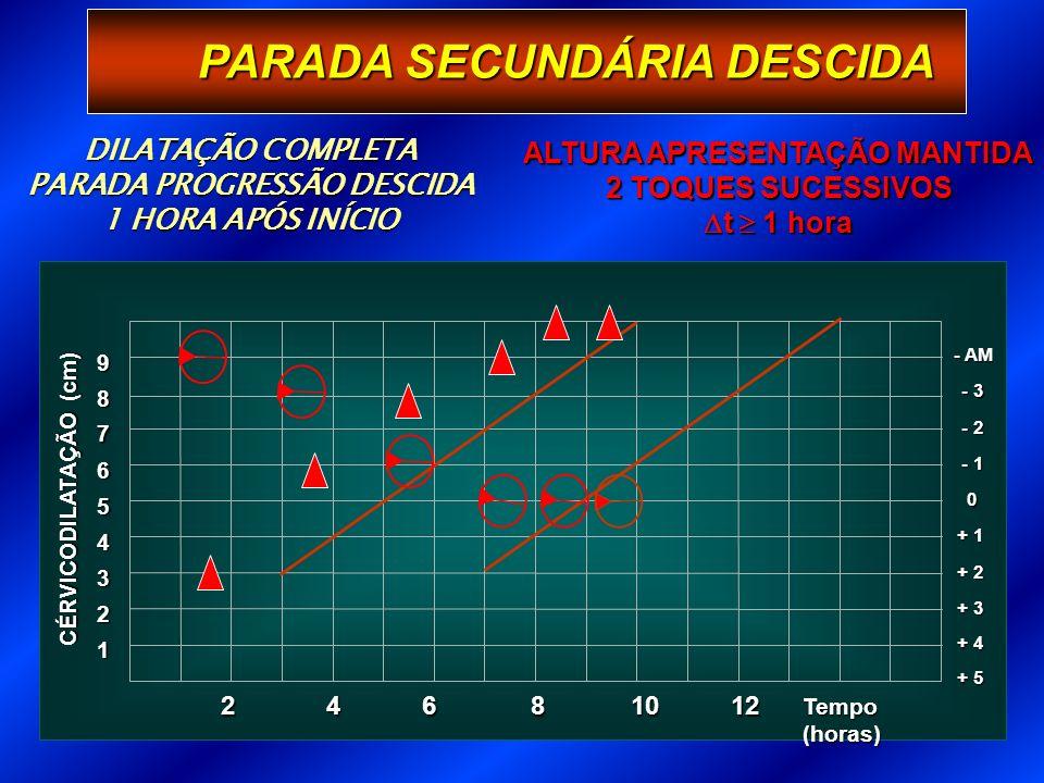PARADA SECUNDÁRIA DESCIDA 1 Tempo (horas) 2 3 + 3 4 + 2 5 + 1 6 0 7 - 1 8 - 2 9 - 3 - AM + 4 + 5 CÉRVICODILATAÇÃO (cm) 246 81012 DILATAÇÃO COMPLETA PARADA PROGRESSÃO DESCIDA 1 HORA APÓS INÍCIO ALTURA APRESENTAÇÃO MANTIDA 2 TOQUES SUCESSIVOS t 1 hora t 1 hora
