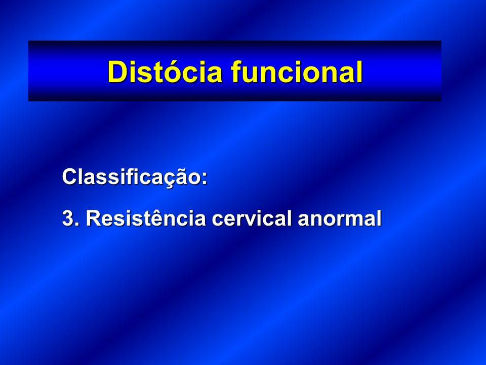 Classificação: 3. Resistência cervical anormal Distócia funcional